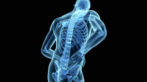 medical animation of a man having a backache