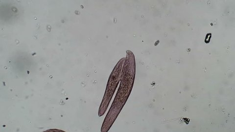 Pink Blepharisma protozoa in sexual conjunction.  While actual population increase is achieved by cell division, actual sexual recombination and nuclear exchange  is done in conjunction as shown here