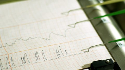 The pens of a polygraph machine record on a printout the results of a deception detection test.