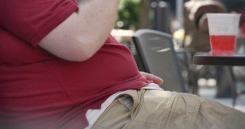 Obesity in America.