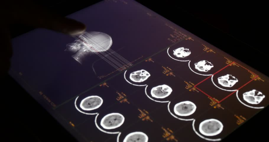 4k Doctor Operating PET-CT X-ray film on touchscreen ipad app software for analysis.scientific radiography hightech radiation background,orthopaedic organs.health medical hospital. gh2_08327_4k