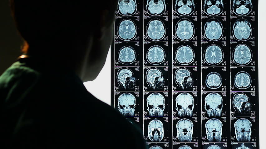 Head MRI, surgeon observing skull brain x-ray film, analysis. Doctor studying patient's brain image before surgery, disappointed, unhappy with results. Early diagnosis, medical science development