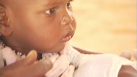 Doctor vaccinating a baby against measles at a vaccination clinic in Chad, Africa,